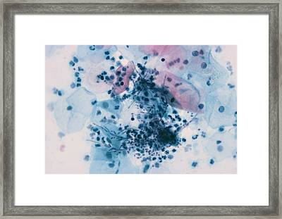 Thrush In Cervical Smear Framed Print
