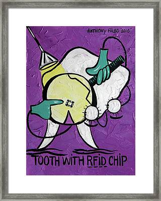 Tooth With A Rfid Chip Framed Print by Anthony Falbo