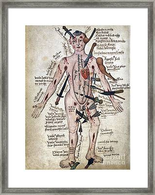 Wound Man, 15th Century Framed Print by Wellcome Images