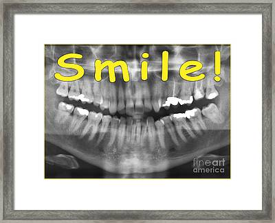 Yellow Panoramic Dental X-ray With A Smile  Framed Print by Ilan Rosen