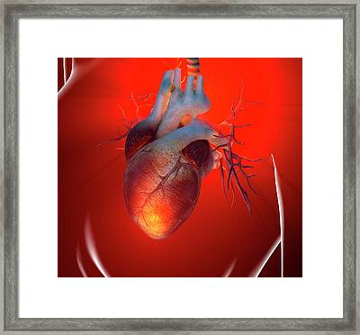 Heart Attack, Conceptual Artwork Framed Print by Science Photo Library - Roger Harris