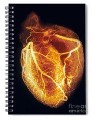 Angiogram Spiral Notebooks