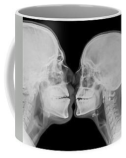X-ray Kissing Coffee Mug