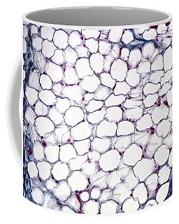Adipose Tissue, Lm Coffee Mug