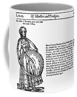 Childbirth Anomalies Coffee Mug