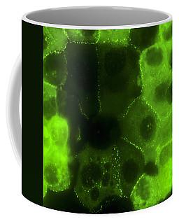 Human Keratinocytes, 2 Of 4 Coffee Mug