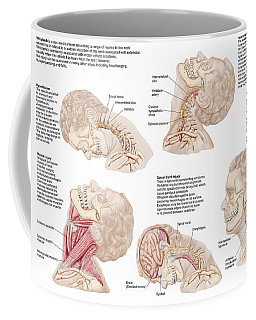 Medical Chart Showing The Range Coffee Mug
