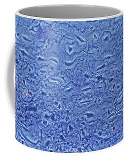Mucous Connective Tissue Coffee Mug
