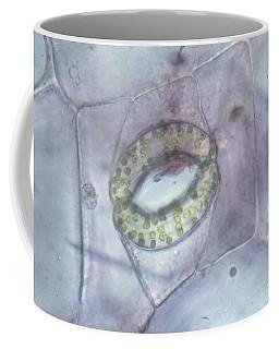 Open Stoma, Wandering Jew Coffee Mug