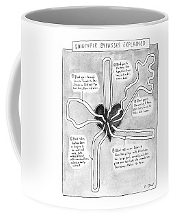 Quintuple Bypasses Explained Coffee Mug
