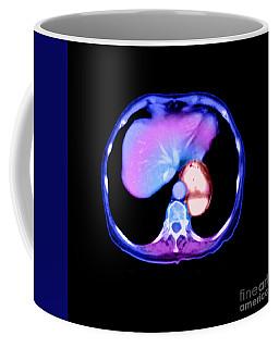 Hiatal Hernia Coffee Mug