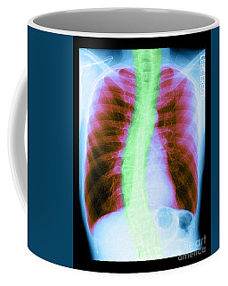 X-ray Of Copd And Scoliosis Coffee Mug