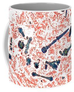 Asbestos Bodies In Human Lung, Lm Coffee Mug