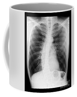Chest X-ray - Copd And Scoliosis Coffee Mug