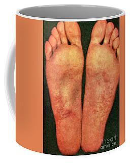Dyshidrosis Coffee Mug