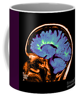 Mri Of Multiple Sclerosis Coffee Mug