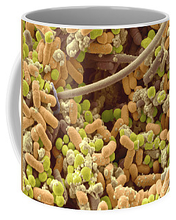 Bacteria In Human Tonsil Pus, Sem Coffee Mug