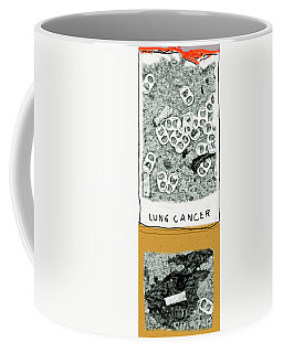 Cancer Stick Coffee Mug by Joe Jake Pratt