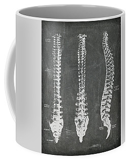 Chalkboard Anatomical Spines Coffee Mug