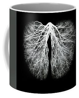 Pulmos Mundi Coffee Mug