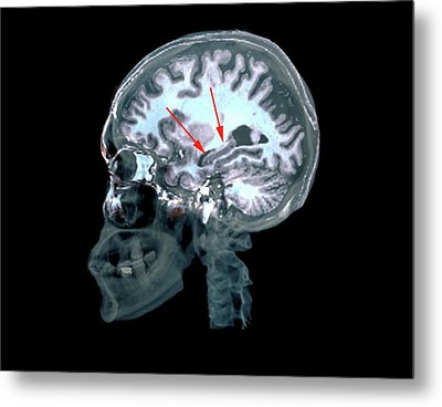 Brain In Alzheimer's Disease Metal Print
