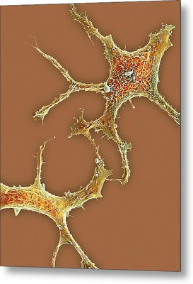 Breast Cancer Cells Metal Print by Science Photo Library