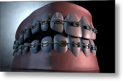 Creepy Teeth With Braces Metal Print by Allan Swart