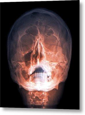 Fractured Skull Metal Print