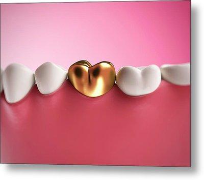Gold Filling In Tooth Metal Print by Sebastian Kaulitzki