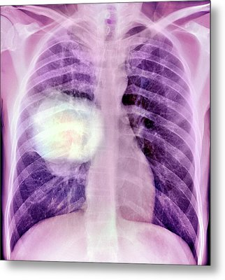Lung Cancer Metal Print