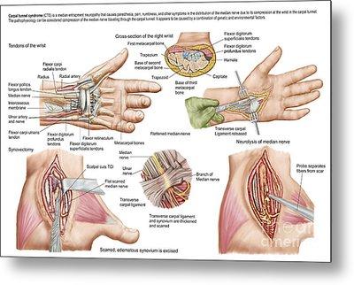 Medical Illustration Showing Carpal Metal Print