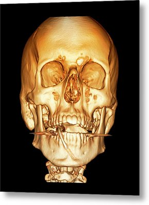 Road Accident Victim On Ventilation Metal Print by Zephyr