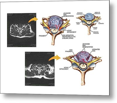 Slipped Discs In The Cervical Spine Metal Print by John T. Alesi