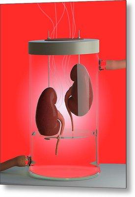 Spare Kidneys Metal Print by Tim Vernon