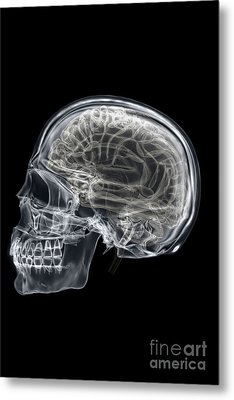 The Skull And Brain Metal Print by Science Picture Co