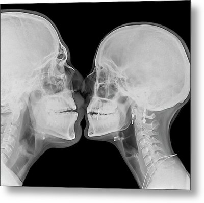X-ray Kissing Metal Print by Photostock-israel