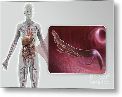 Schistosoma Parasite Worm Metal Print