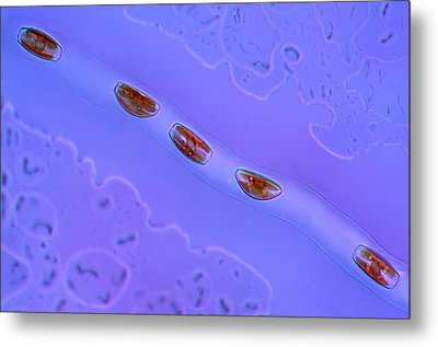 Diatoms Metal Print