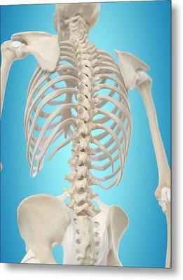 Human Spine Metal Print by Sciepro