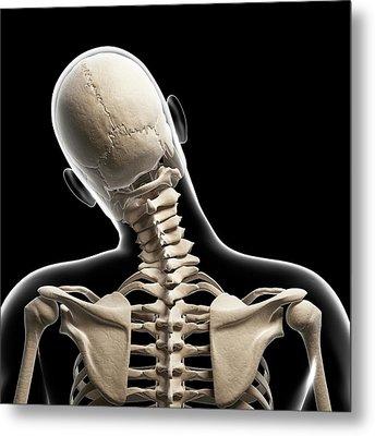 Human Skull And Neck Bones Metal Print by Sebastian Kaulitzki