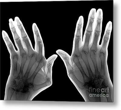 Arthritic Hands, X-ray Metal Print by Zephyr
