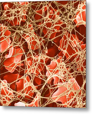 Blood Clot Sem, 2 Of 3 Metal Print by David M. Phillips