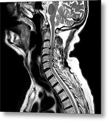 Compressed Spinal Cord Metal Print