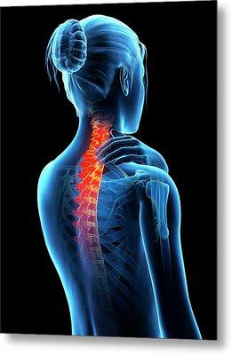 Human Neck Pain Metal Print by Sebastian Kaulitzki