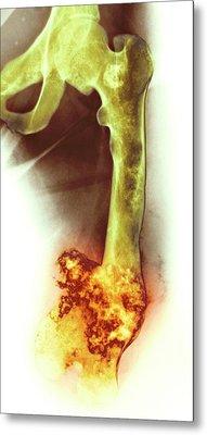 Bone Tumour Metal Print