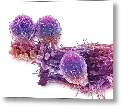 Cancer Cell And T Lymphocytes Metal Print by Steve Gschmeissner