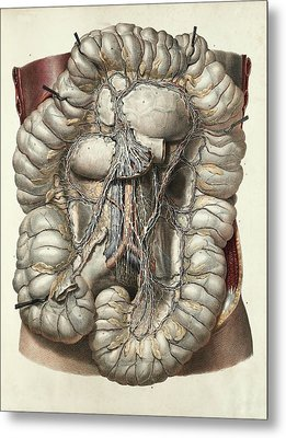 Large Intestine Metal Print by Science Photo Library