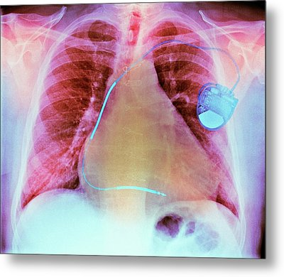 Pacemaker In Heart Disease Metal Print by Dr P. Marazzi