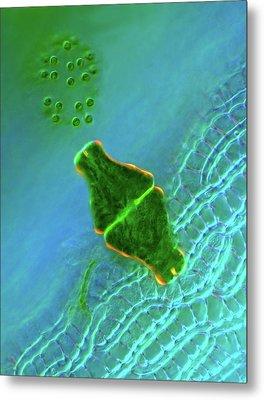 Desmid And Dictyosphaerium Green Algae Metal Print by Marek Mis