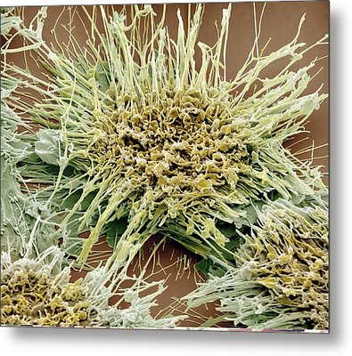 Vaginal Cancer Cells, Sem Metal Print by Science Photo Library